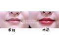荆州玻尿酸丰唇为您打造晶莹剔透的诱人双唇