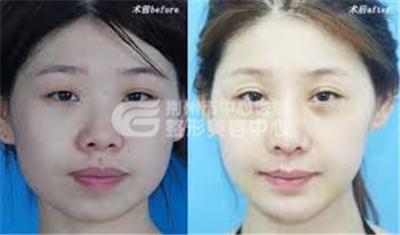 荆州注射玻尿酸隆下巴后几天能消肿