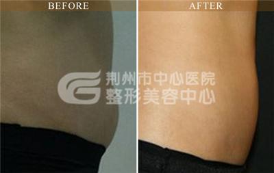 荆州做腰腹部吸脂减肥术后恢复要多久?