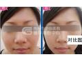 荆州打botox瘦脸针的费用要多少