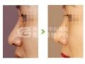 荆州常用的鹰钩鼻矫正术有哪些