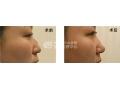 荆州驼峰鼻整形的价格是多少