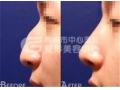 荆州驼峰鼻矫正的术前准备工作