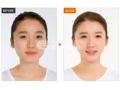 瘦脸针就是肉毒素针剂吗?