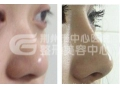 荆州自体软骨隆鼻一般都有哪些材料呢?