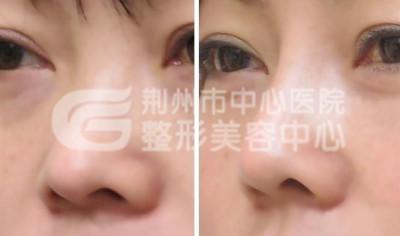 选择自体组织隆鼻整形的效果真的好吗?