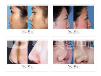 荆州自体软骨隆鼻 轻松成就气质美女