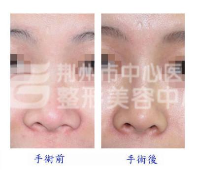 什么是自体组织隆鼻整形手术?