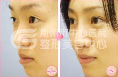 荆州注射隆鼻有年龄的限制吗?