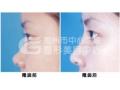 荆州注射隆鼻整形的效果好不好?