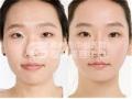 注射隆鼻后出现肿胀正常吗?