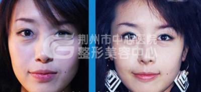 荆州注射隆鼻美容让你的美丽浑然天成!