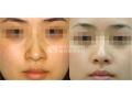荆州打瘦脸针的效果明显吗?
