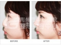 荆州选择做膨体隆鼻的效果如何?