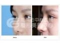 隆鼻手术后对鼻子的正常功能有影响吗?