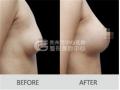 做完自体脂肪隆胸手术会留下疤痕吗?