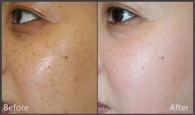 激光去晒斑会对皮肤造成伤害吗?