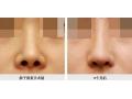 做隆鼻假体取出之前要注意哪些事项?