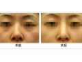 隆鼻假体取出后要注意哪些事项?