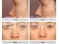 注射玻尿酸隆鼻能维持多久?