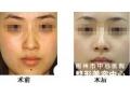 如何改善面部皮肤暗黄?
