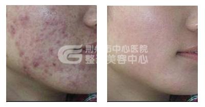 荆州祛疤,就是如此简单