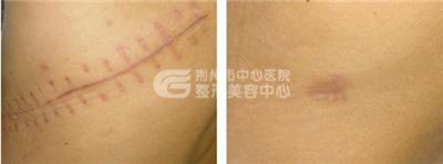 激光祛疤恢复要多长时间?