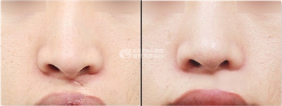 什么是唇裂鼻畸形修复术呢?