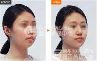 打瘦脸针有哪些适用症和禁忌?