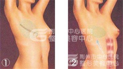 乳房修复再造术好不好?
