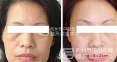 塑美极治疗后会不会留下疤痕?