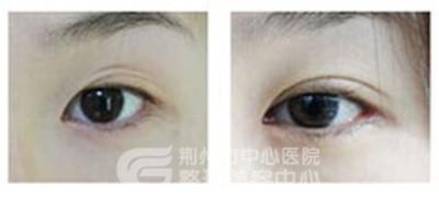 双眼皮手术的术后护理