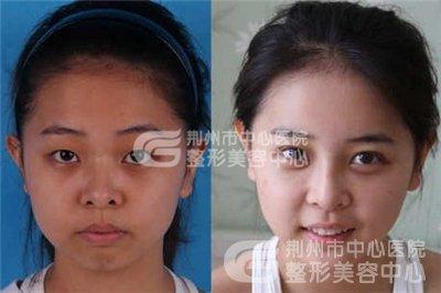 荆州鼻头缩小术大概需要多少钱?