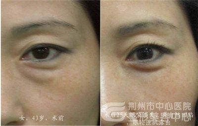 荆州去眼袋手术医院哪家最好