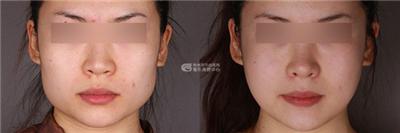 下颌角整形术后护理要注意哪些
