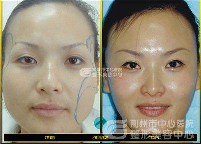 下颌角整形术后的护理事项