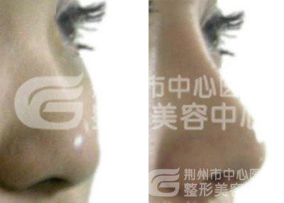 荆州伊维兰塑形注射隆鼻怎么样?