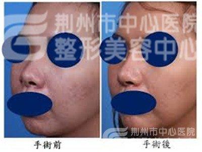 朝天鼻是怎么矫正的?