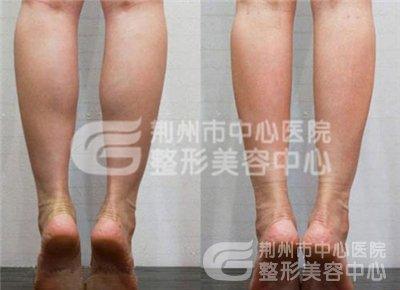 荆州整形美容中心小腿吸脂术
