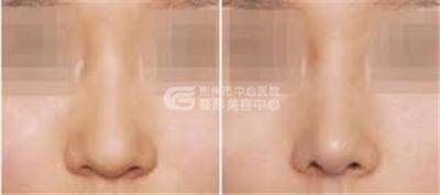 做鼻头缩小手术疼吗?