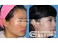 荆州做隆鼻手术会不会有很痛的感觉?