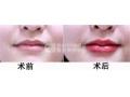 荆州玻尿酸的丰唇效果怎么样呢?