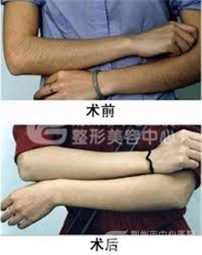 彩光脱手臂毛的效果如何?