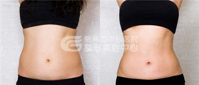 荆州腰腹部吸脂的价格是多少?