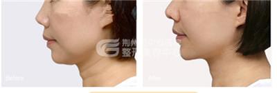 注射玻尿酸去颈纹的效果好不好?