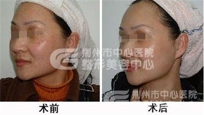 面部的黄褐斑要如何去除?