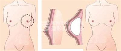 荆州乳房再造的价格是多少?