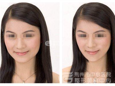 改脸型手术的安全性如何?