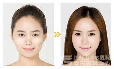韩式改脸型的效果好不好?