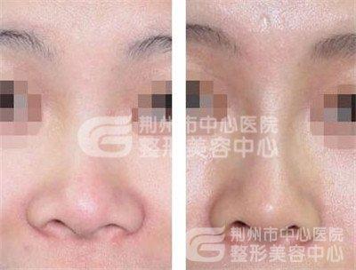 荆州鼻翼缩小术的价格是多少?